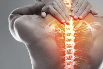 Берут ли в армию с остеохондрозом разных степеней